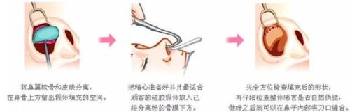 锦州博美雅鼻综合 鼻翼/鼻头缩小/鼻尖抬高 专属定制 宛若天成