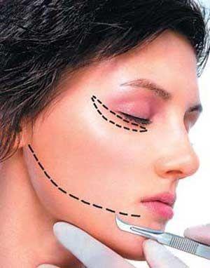 下颌角整形安不安全与哪些因素有关