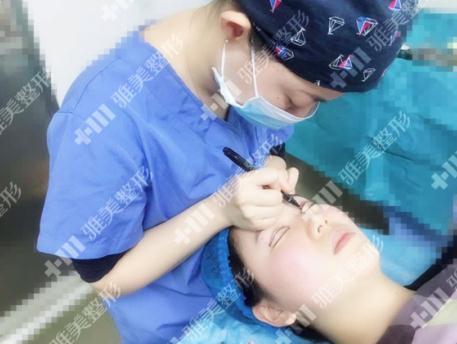 超级自然的开扇形双眼皮实录,雅美医生告诉你怎么改善眼睛一大一小的问题