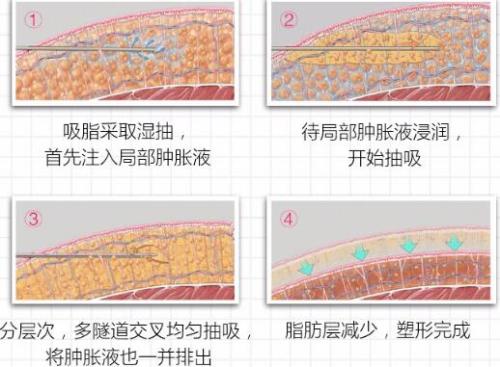 锦州博美雅水动力大腿吸脂 拒绝凹凸不平 摆脱大象腿 让你轻松拥有筷子腿