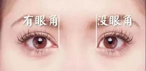 有眼角vs没眼角 做双眼皮要不要开眼角