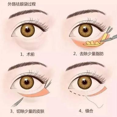 5种去除眼袋的方法,了解下
