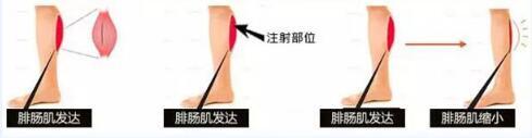 锦州博美雅瘦腿针 柔美曲线 告别粗壮大象腿 还你美腿