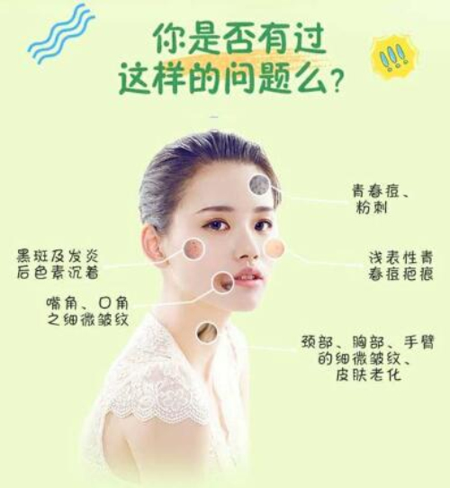 锦州博美雅GS果酸疏通管理 收缩毛孔 唤醒肌肤 瓷感美肌 告别痘痘侵扰