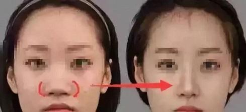 鼻尖过高迟早要修复 网红鼻应该注意这几点