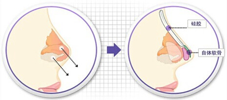 隆鼻要避开生理期 生理期做整形的有哪些隐患