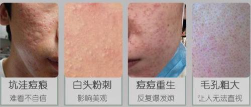 锦州博美雅点阵激光祛痘印 微创无痕祛除痘坑痘印 还你完美无瑕的肌肤