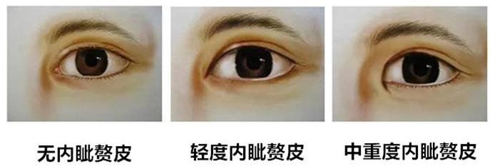 哪些人不适合开眼角 开眼角多久可以恢复