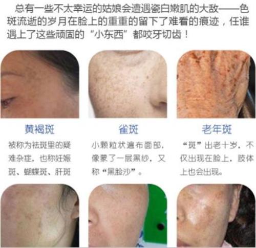 锦州博美雅皮秒净斑(全面部)单次 雪白美肌 不止于祛斑