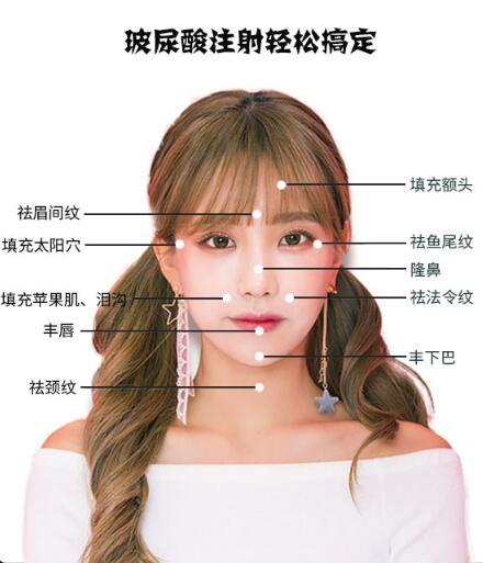 郑州菲林海薇玻尿酸0.75ml 饱满填充 塑造精致立体轮廓