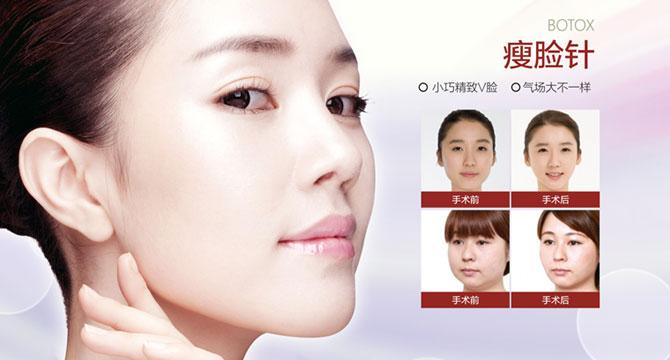 脸大打瘦脸针合适吗 打瘦脸针的禁忌有哪些