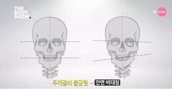 面部不对称怎么回事 大小脸怎么矫正
