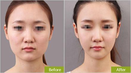 做面部吸脂手术恢复时间长吗