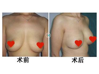 女性该如何预防胸部下垂 日常保养很重要