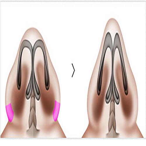广元朗睿鼻翼缩小塑形 手术缩鼻翼 离完美女神更近一步