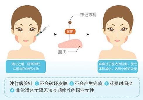 沈阳创美衡力瘦脸针 改善双侧咬肌