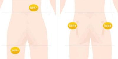 广元朗睿自体脂肪形体雕塑 让你瘦出小蛮腰丰出圆润翘臀