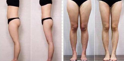 广元朗睿大腿部吸脂360°水动力环吸 吸脂瘦身不反弹 塑造迷人好身材