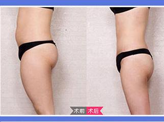 沈阳创美腰腹部吸脂 打造柔美S曲线
