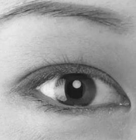 双眼皮做什么形状好 合适的才是最好的