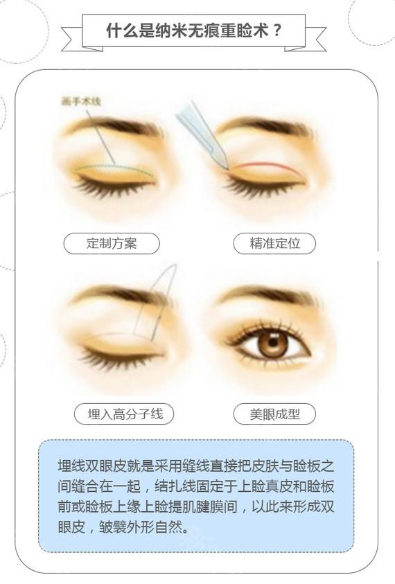 四川宜宾华仁韩式埋线双眼皮 专业眼技派 让你的眼眸更加出彩