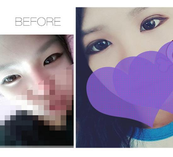 四川宜宾华仁韩式微创双眼皮 让你摘镜更有戏 眉目可传情