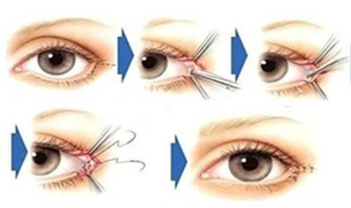 整容打造萌萌的大眼睛 不止有双眼皮和开眼角