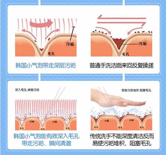 宜宾华仁韩国进口超微小气泡毛孔深层清洁+清除顽固黑头+收缩毛孔+控油美白
