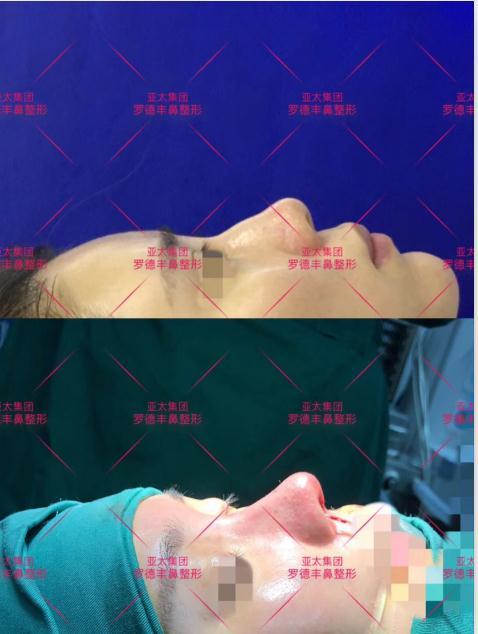 【医美新锐】重庆亚太整形罗德丰的鼻综合整形