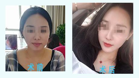 上海御颜鼻综合 精雕自然 大咖亲诊