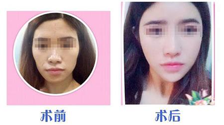 上海御颜自体脂肪丰面颊 重塑青春少女轮廓
