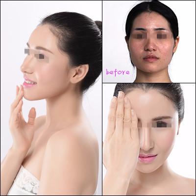 益阳格莱美硅胶隆鼻 韩式微创 高端定制美鼻
