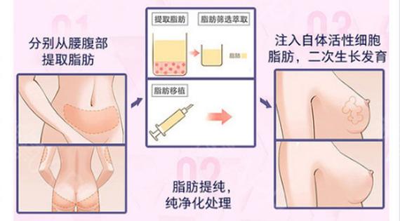 宜宾华仁PRF纳米自体脂肪丰胸 吸脂隆胸 增大1-3罩杯以上瘦身丰胸 自然真实 成活率高