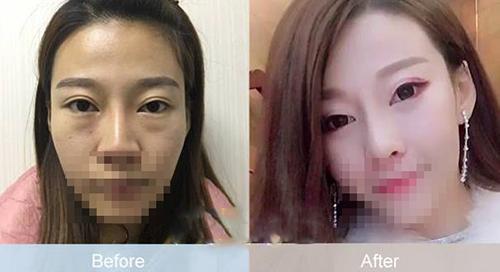 中山爱思特韩式无痕祛眼袋 告别老态提升年轻