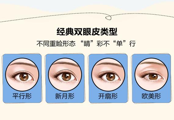 眉山悦美韩式双眼皮 精细美眼技术 微翘妩媚 放大眼眸 精细缝合 肿胀轻 恢复快