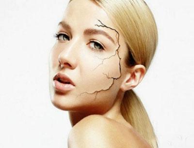 修复疤痕有哪几种办法 修复后有什么禁忌