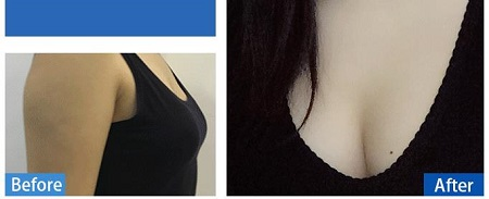 四川自体脂肪36D美胸 显现性感曲线美