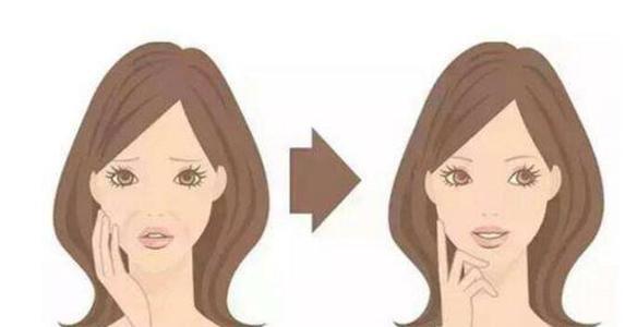 恒美衡力肉毒素除皱 注射除皱青春逆龄术 拯救褶皱脸 解决面部动态纹