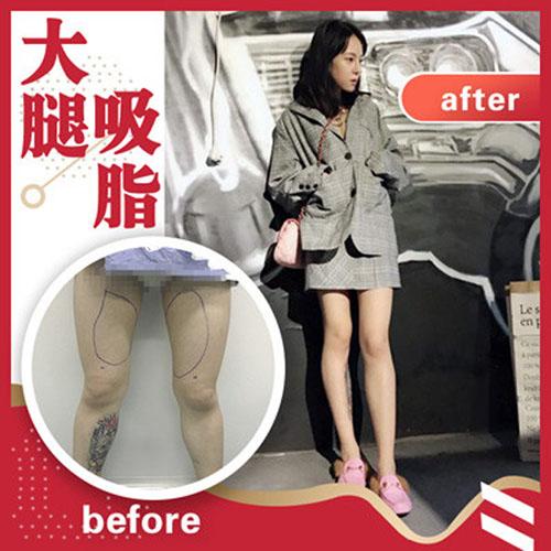 北京瑞丽天承大腿环吸 360°大腿环吸 摆脱大象腿 苗条腿型自然来