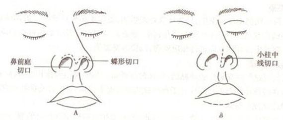 合肥恒美假体隆鼻 安全无痛 术后无疤痕 形态自然逼真
