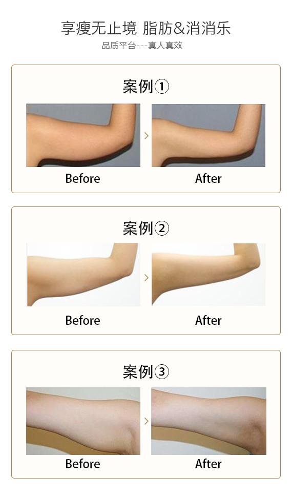 北京瑞丽天承手臂吸脂 甩掉拜拜肉 告别麒麟臂 吸脂塑形 减掉顽固脂肪 吸脂减肥正当时