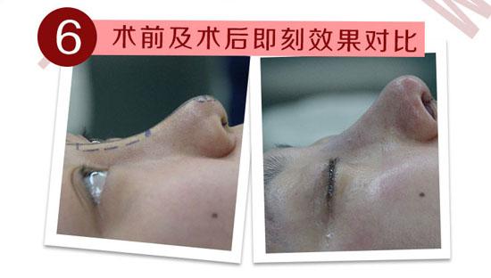 大庆超龙硅胶假体隆鼻 威宁假体隆鼻 假体精致雕刻 自然植入 鼻尖自然成形