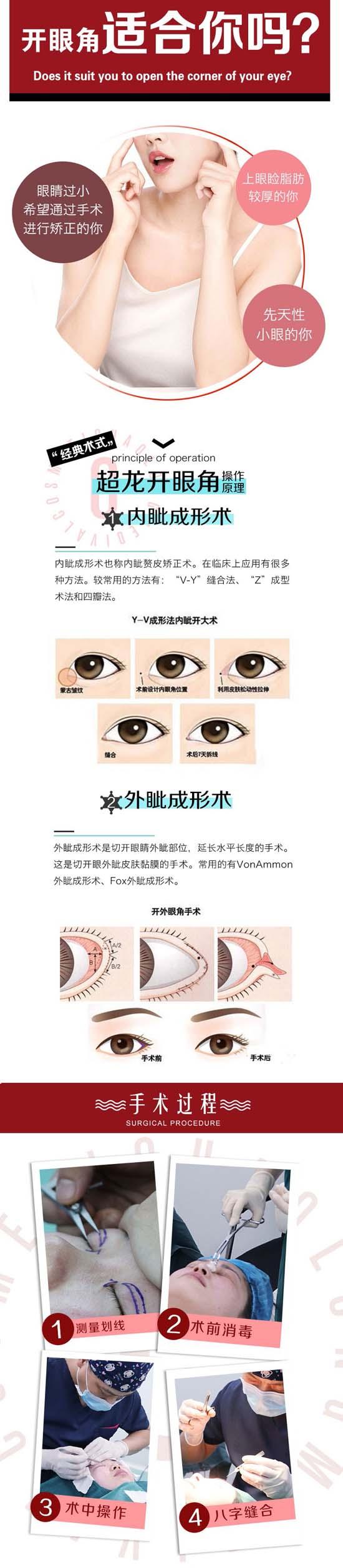 大庆超龙开眼角  隐形法开眼角 翘睫传神 自然放大双眼