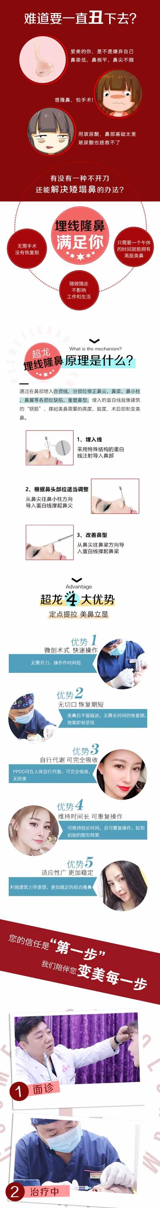 大庆超龙埋线隆鼻 不动刀 30分钟做完无需拆线 安全性高