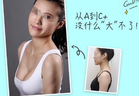 南宁东方进口曼托假体隆胸 内窥镜可视化
