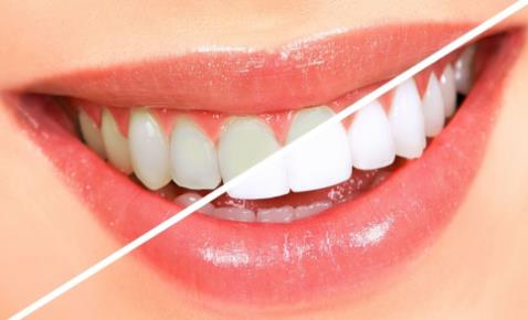 激光美牙和冷光美牙更能保持多久