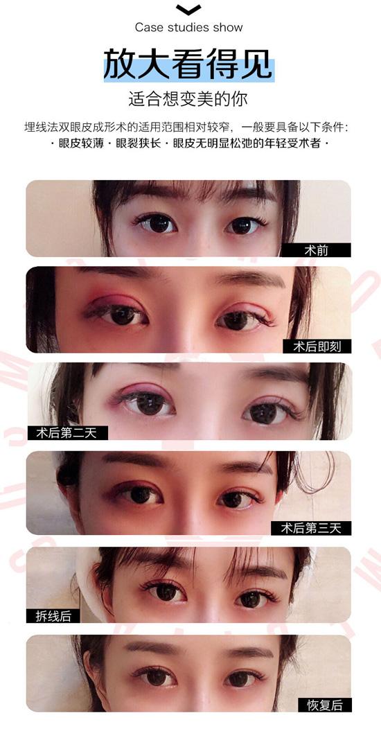 大庆超龙埋线双眼皮 眼部美学形态与个人五官比例相结合 无须切口 创伤小 眼睛更漂亮更自然