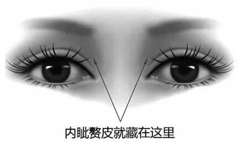 肇庆华美开内眼角 明眸媚眼 打造至美灵动眼睛弧线