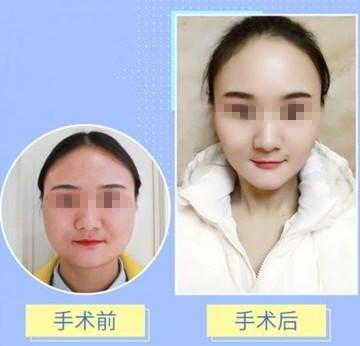 赣州薇琳肉毒素瘦脸 紧致提升 塑造青春小v脸
