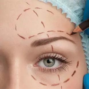 福州美莱精细切眉术 提升紧致 眼周年轻化